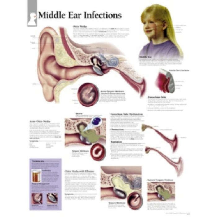 Ear Anatomy Chart Middle Ear Conditions